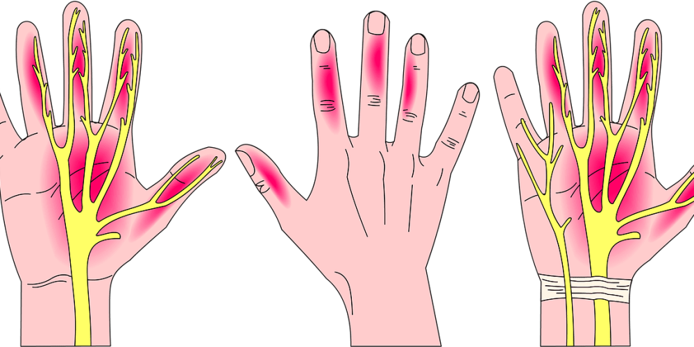 svg free library How I Fixed My Carpal Tunnel Pain