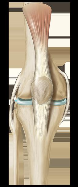 clip art download Total Knee Replacement
