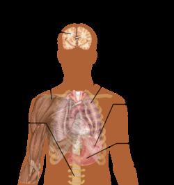 jpg free stock Wikipedia main symptoms of. Vector born malaria