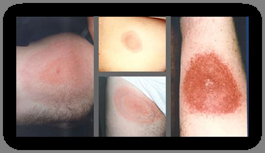vector library stock Tick borne diseases mmcri. Vector born rash