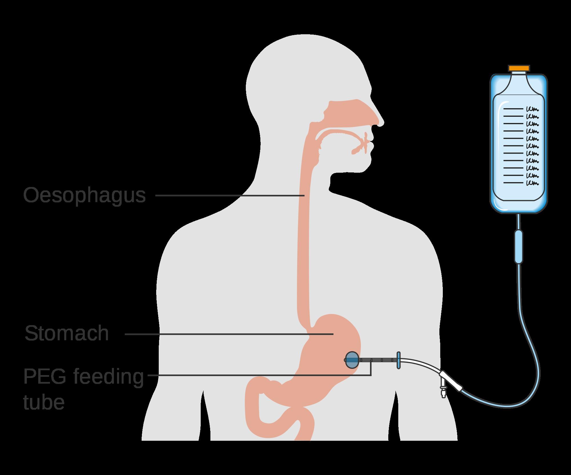 graphic Vector bundles endoscope. File diagram showing the