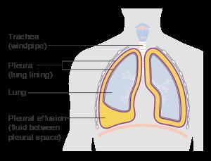 svg royalty free Pleural effusion wikipedia diagram. Vector capacity lung