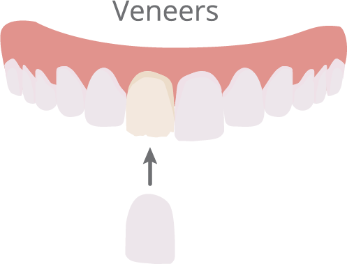 graphic library library Vector dental cosmetic dentistry. Anderson dentist cornerstone porcelain