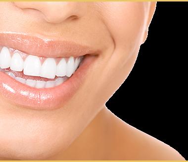 picture library stock Vector dental cosmetic dentistry. In dubai veneers teeth