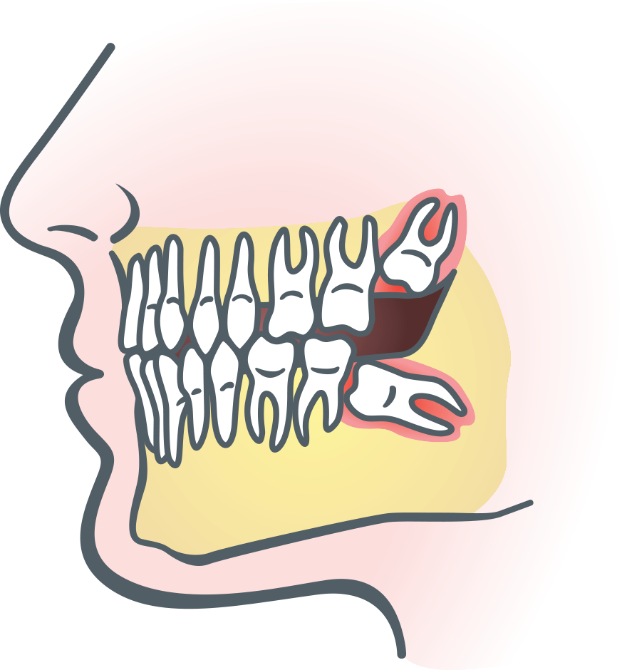 graphic freeuse download Wisdom clipart.  collection of teeth