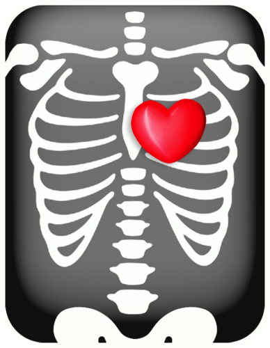 clipart royalty free X ray clipart. Free radiology chest with